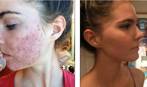 Làn da Nina thay đổi rõ rệt sau 6 tháng thay đổi chế độ ăn. Ảnh: Mail Online.