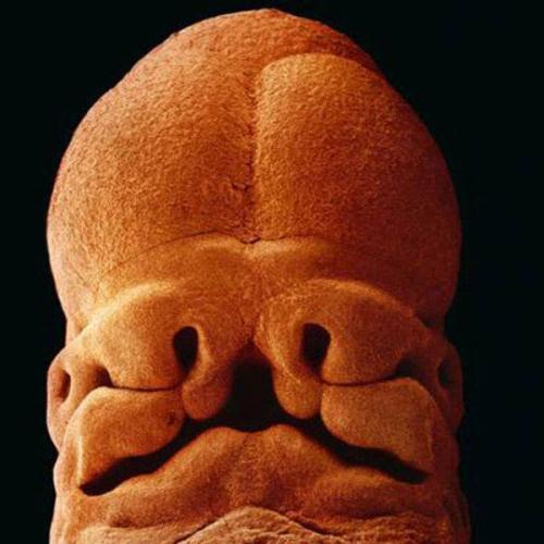 5 tuần, thai nhi dài khoảng 9 mm. Lúc này, bạn có thể nhận ra khuôn mặt của con với hốc mắt, lỗ mũi và miệng