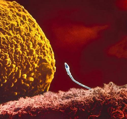 Tinh trùng tìm cách tiếp cận với trứng