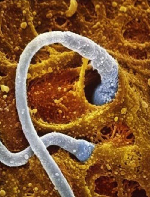 Hai tinh trùng tiếp cận với trứng