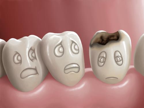 Chảy máu chân răng cũng cảnh báo sâu răng